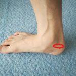 足首の内側の痛みは後脛骨筋膜炎だった!症状や治す方法について